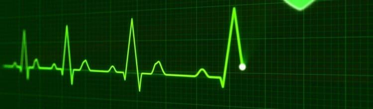 תמונת נושא עבור פיצוי בגין אוטם בשריר הלב הקשור לאירוע בעבודה