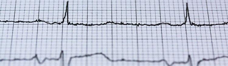 """תמונת נושא עבור """"כלל"""" חויבה להחזיר לתוקף פוליסת ביטוח של חולה לב"""